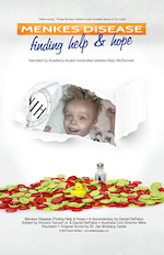 A movie poster reading Menkes Disease: Finding Help and Hope. Red and green plastic discs sit in a pile at the bottom of the poster and in the middle, paper is torn back to reveal a smiling baby.